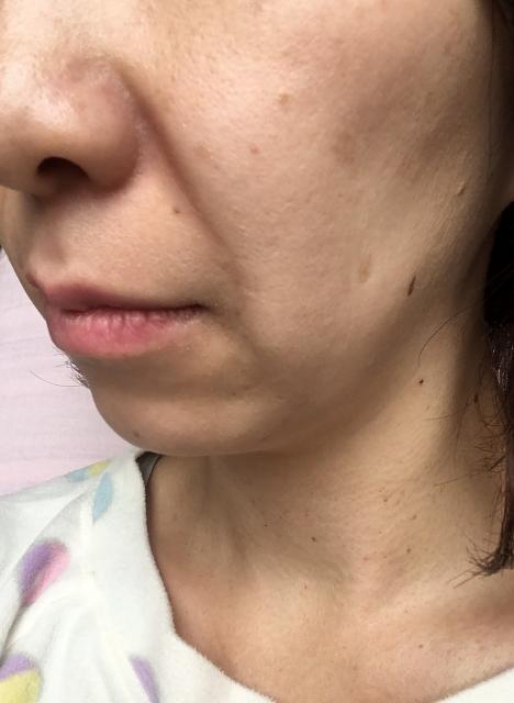 頬全体にうっすらと現れたシミ。これが「老け顔」の原因ともなる