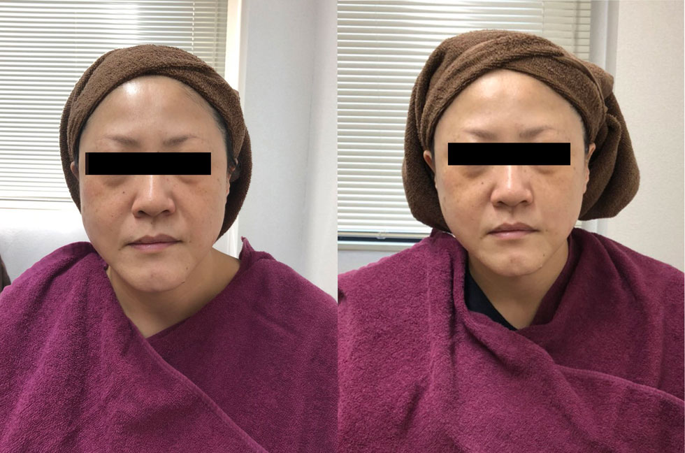 左が施術前、右が施術後の肌。パッと見ただけで肌色が全く違うのがわかる