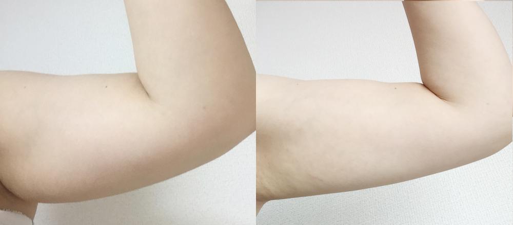 右が2月16日現在の二の腕。まだまだ太いが少しスッキリしてきた