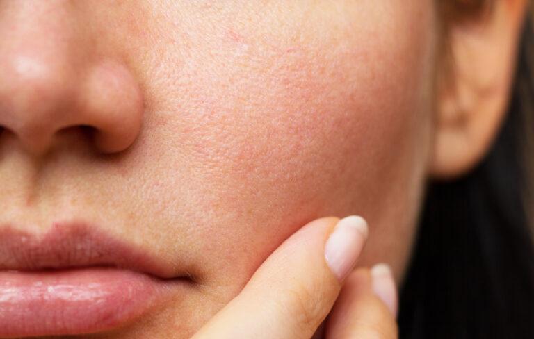 顔のたるみは立毛筋の衰え?毛穴開き解消は立毛筋を知ることがカギ!
