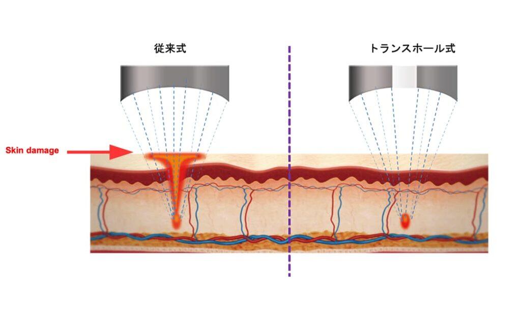 トランスホール式照射の図