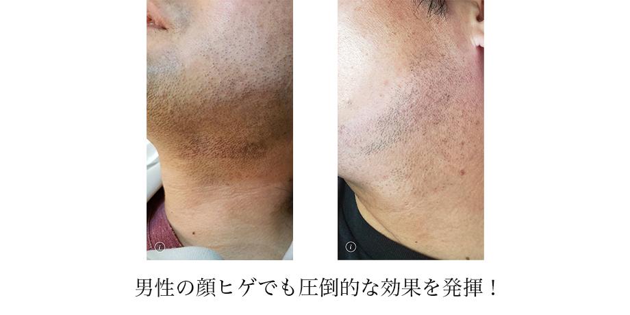男性の顔ヒゲでも圧倒的な効果を発揮